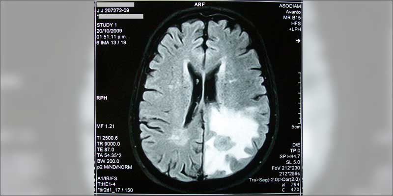 braincancer1