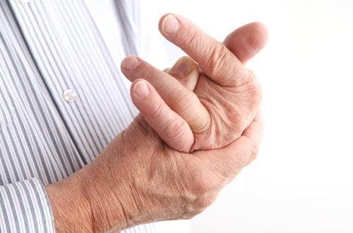 arthrisis-hand
